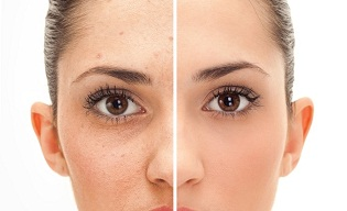 How-to-Get-Rid-of-Pimples-Fast