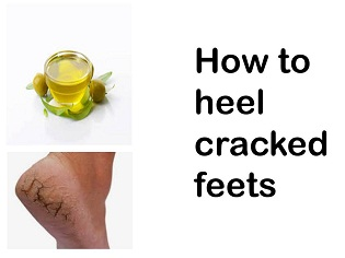Heel your Cracked Feets Fastly