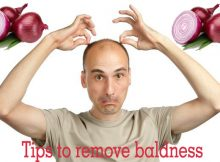 Tips to remove baldness . Many people are worried because of thier falling hairs either they are men or women