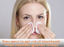 Easy ways to get rid of blackheads home remedies (gharelu totkay)