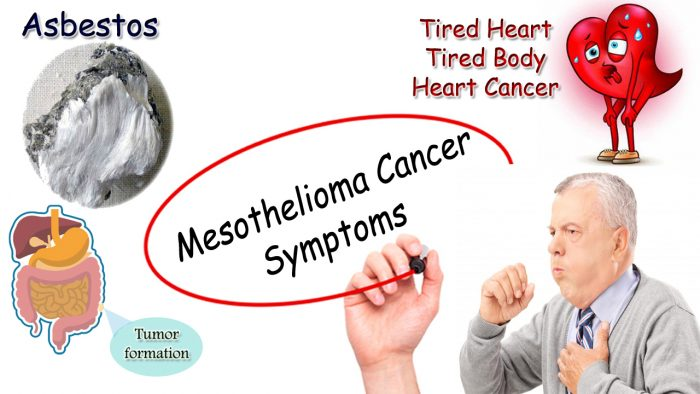 Mesothelioma Cancer Symptoms